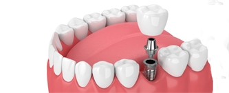 FAQ: Dental Implants