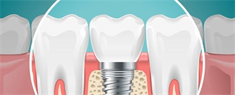 Be Confident About Dental Implants